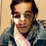 #Ragusa. Stilista pestato a sangue a Comiso mette la foto su Facebook